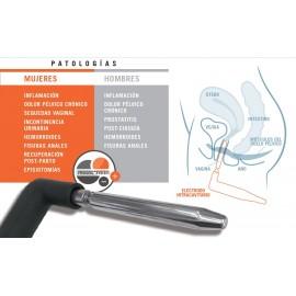 Electrodo Intracavitario resistivo